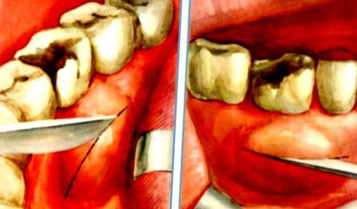 Нарив на яснах: симптоми і лікування пародонтального абсцесу