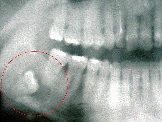 Не варто розраховувати на те, що зуб мудрості прорізатиметься і біль зникне, краще відразу здатися стоматолога.