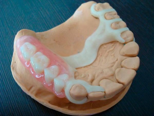 Недорогі зубні протези незнімні