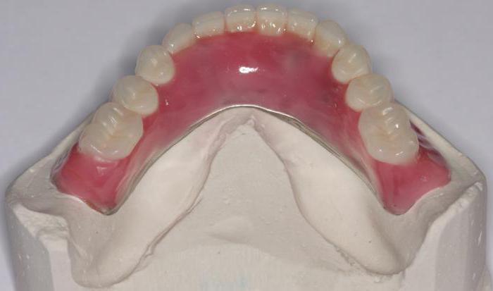 нейлоновий протез при повній відсутності зубів