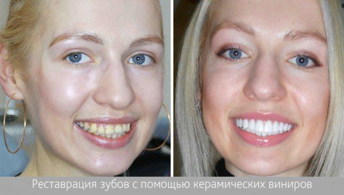 Некрасиві зуби до процедури і білосніжні зуби після реставрації