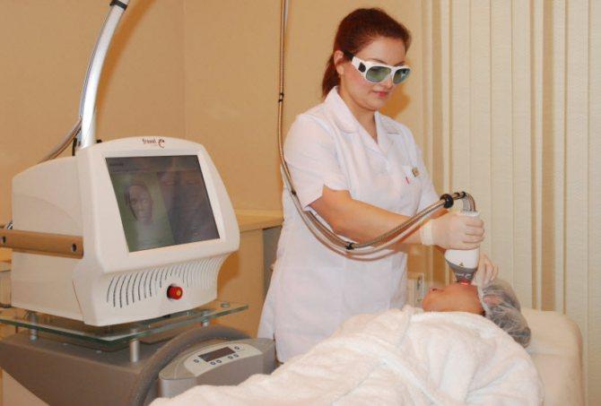 неодимовий лазер в косметології