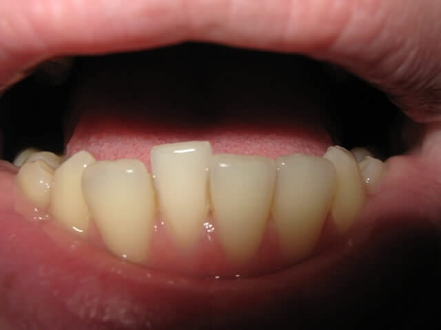 нерівні зуби