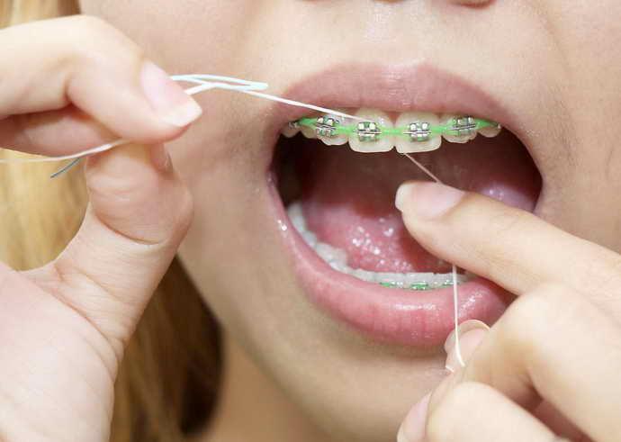нитка для чищення зубів з брекетами