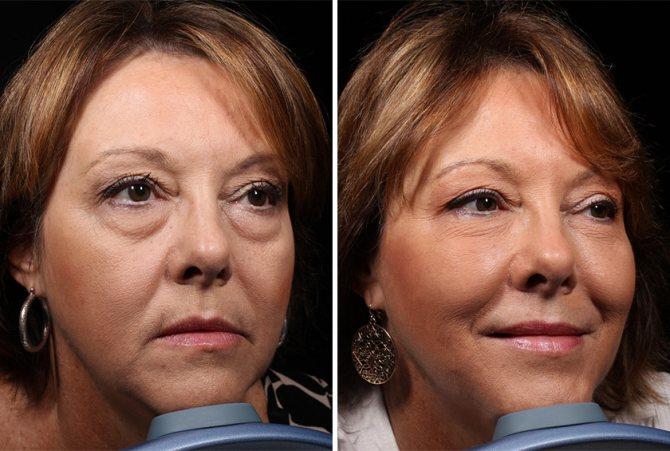 Стек гілок ліфтинг особи фото до і після