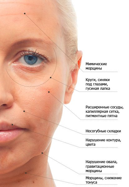 Стек гілок ліфтинг обличчя, повік, шиї, брів, грудних залоз, живота, чола, сідниць. Плюси і мінуси, як роблять, відгуки пацієнтів реабілітація