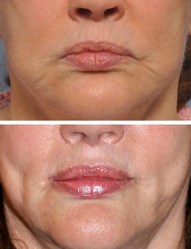 Стек гілок ліфтинг періоральної зони, пероральна ліпосакція і липофилинг губ