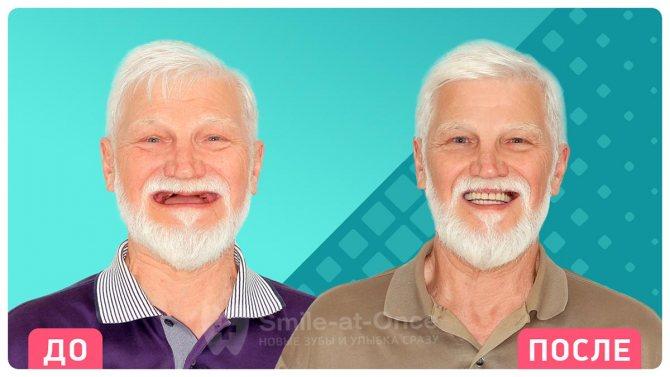 Нові зуби - за 1 день. Швидка реабілітація і незнімні протези відразу після установки імплантів. Фото: Smile-at-Once