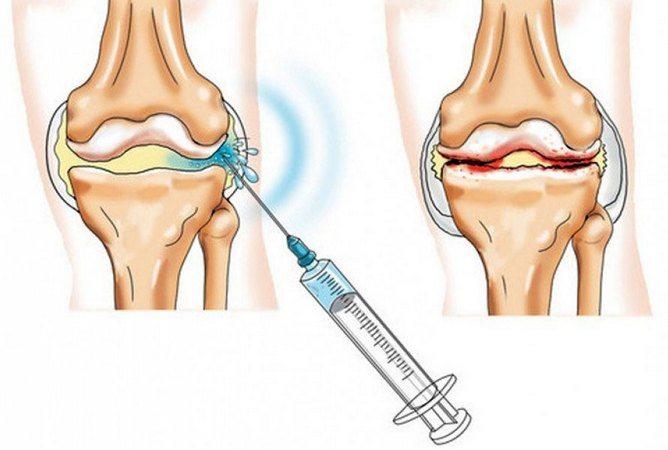 Новий формат лікування суглобів Гиалуроновой кислотою