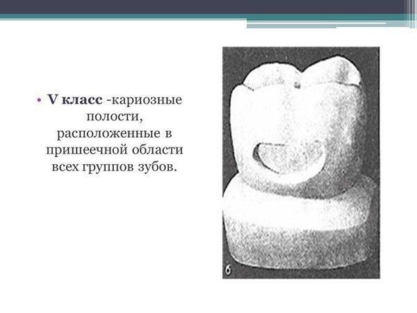 Про класифікацію карієсу в стоматології класи по Блеку