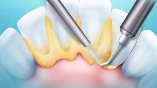 Про шліфовці зубів в найдрібніших подробицях