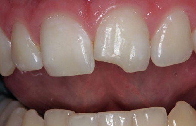 Обламався зуб що робити