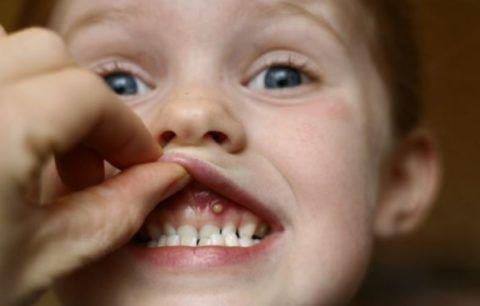 Освіта в порожнині рота
