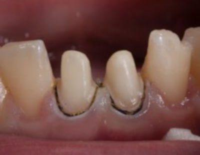 обточені зуби