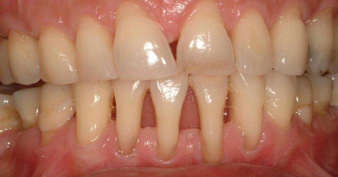 Оголюються корені зубів