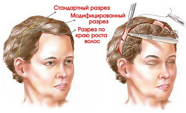 операціооние методи підтяжки лоба