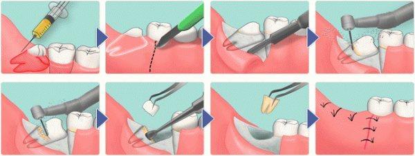 Операція з видалення зуба мудрості