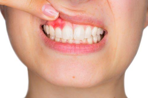 ускладнення перфорації зуба