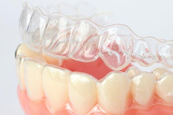 Особливості вирівнювання зубів капами