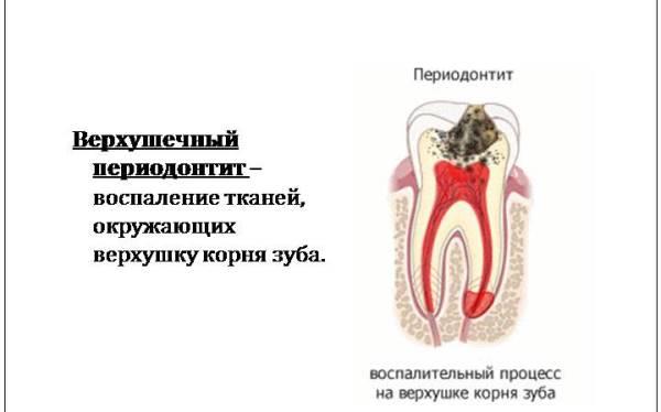 Гострий періодонтит зуба МКБ 10