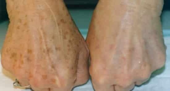 Відбілювання рук до і після