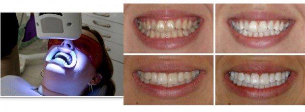 відбілювання зубів лазером