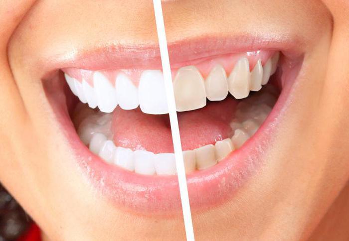 відбілювання зубів системою zoom відгуки