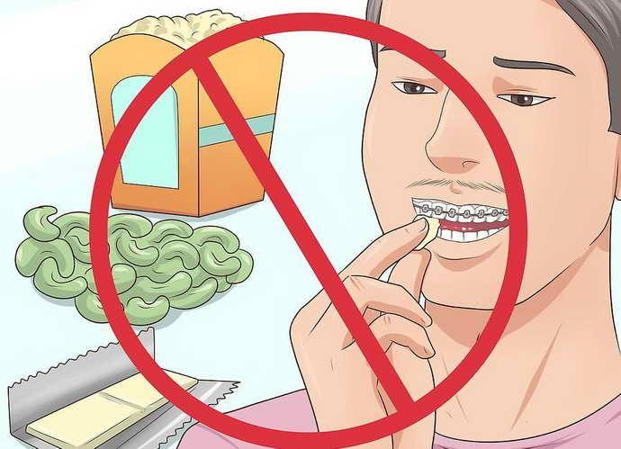 Відмова від твердої і липкою їжі щоб уникнути болю від брекетів