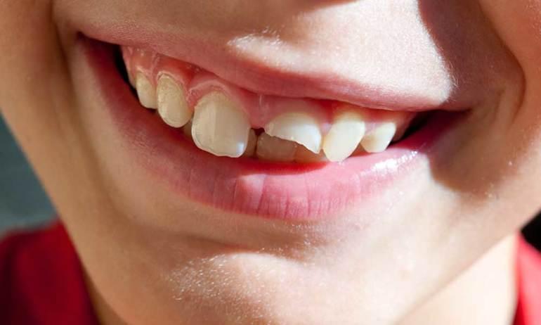 Відколовся зуб без крові до чого