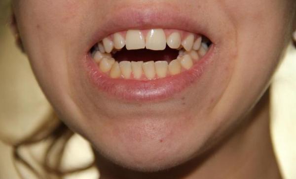 Відкритий прикус зубів фото до і після лікування