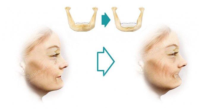 Відсутність зубів - основна причина зморшок навколо рота. Рішення? Відновлення зубів. Фото: Smile-at-Once