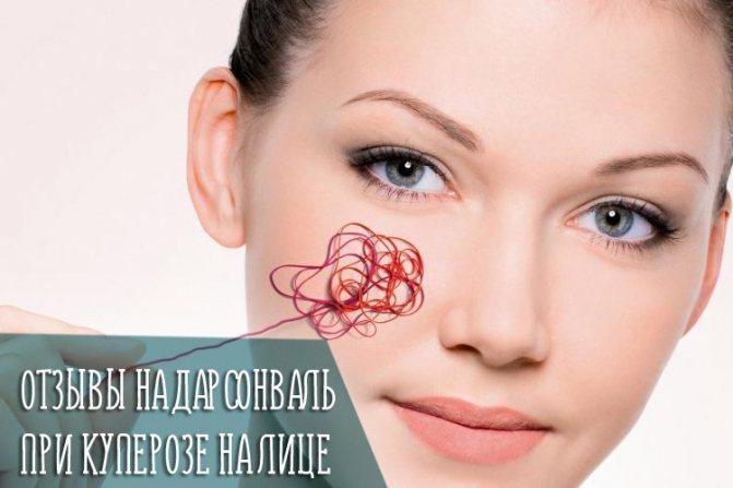 Відгуки на дарсонваль при купероз на обличчі
