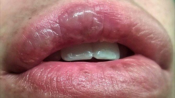 Опік губи.