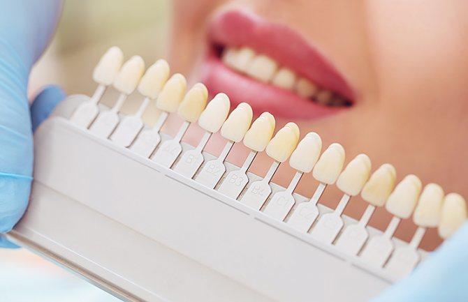 палетка з відтінками для зубів