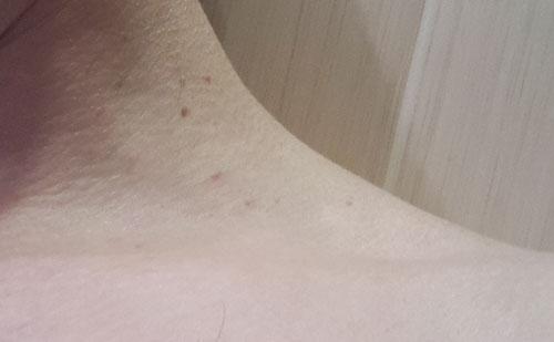 папіломи через два тижні після обробки веррукацідом