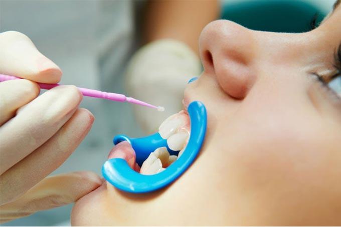 паста для ремінералізації зубів