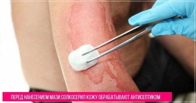 Перед застосуванням мазі солкосерил шкіру акуратно обробляють антисептиком