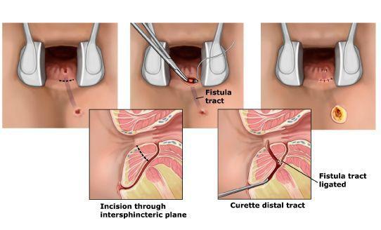 Переміщення клаптя слизової оболонки