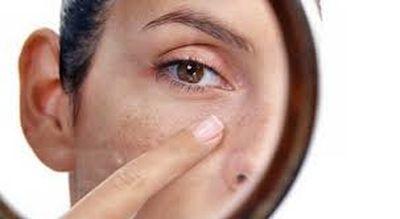 пігментовані плями на шкірі