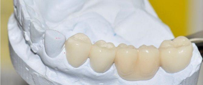 Пластмасовий мостовидний протез