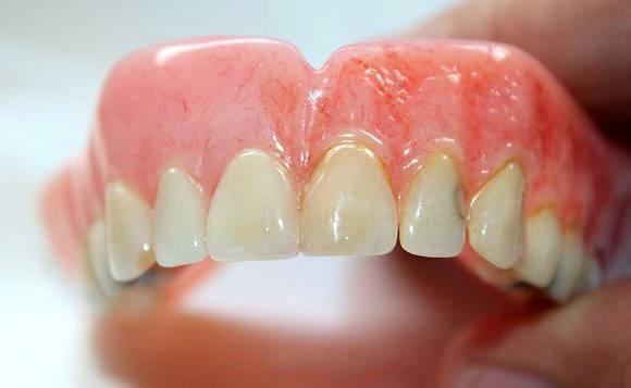 Пластмасовий зубний протез