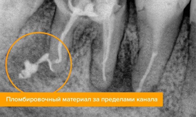 Пломбувальний матеріал за межами каналу на рентгені