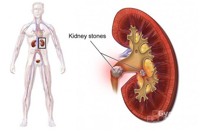Ниркові камені - одна з причин обтурації сечових шляхів