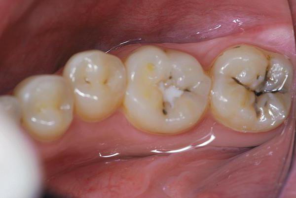 чому болить зуб після пломбування каналів відгуки
