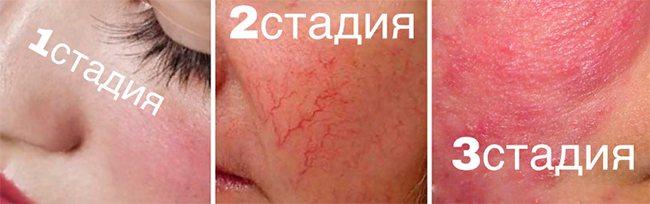 Чому з'являються судинні зірочки на обличчі