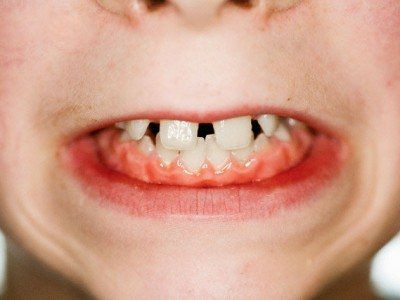 чому стискаю зуби