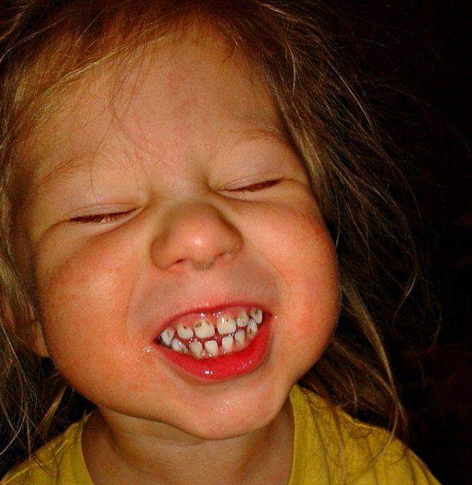 Чому у маленьких дітей чорніють зуби