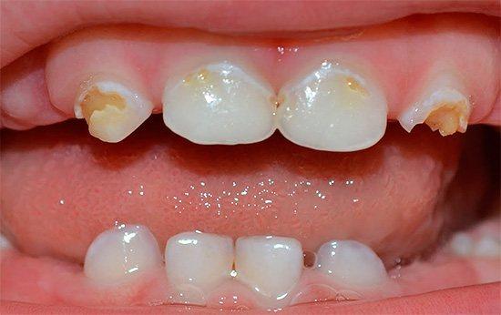 чому у дитини чорніють постійні зуби