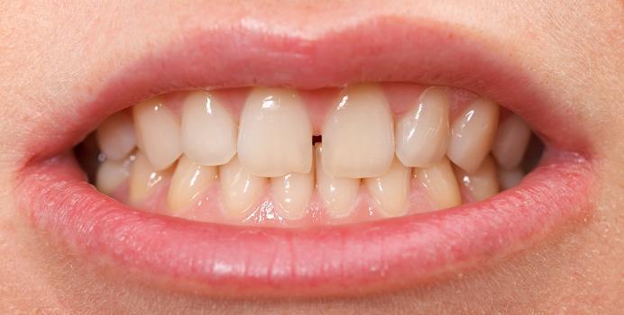 Підпилювання зубів - про процедуру і чи можна виконати вдома