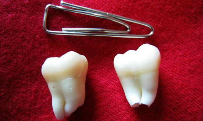 Показання до видалення молочного зуба